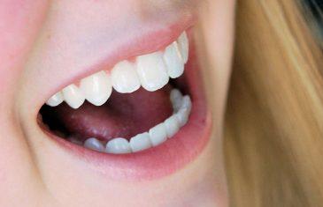 Using Laughter to Bridge Social Gaps